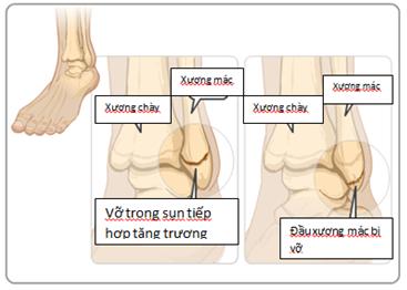Thuốc chống nôn có thể làm rạn xương